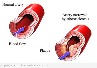 Blood Vessel with Atherosclerosis