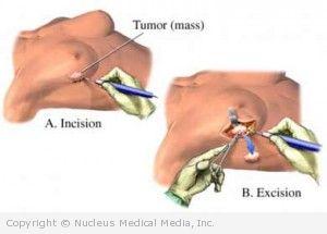 Breast Open Biopsy