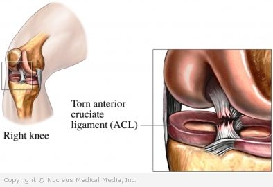 Anterior Cruciate Ligament Surgery Definition Complications Recovery Tests Procedures And