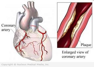 Acute coronary syndrome: What you need to know