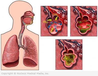 aspiration pneumonia treatment guidelines 2012
