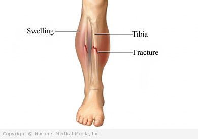 how to tell if your shin is fractured