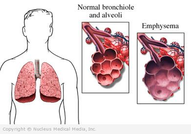 Normal Lung vs Emphysemic Lung